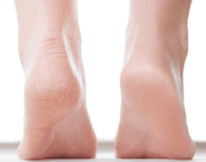 Treat your cracked heels at home 2