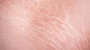 Home solutions for stretch marks 2