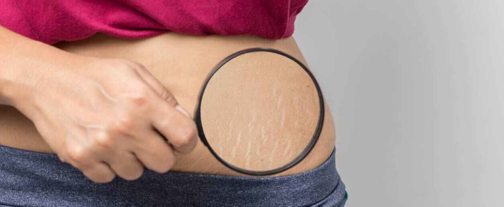 Home solutions for stretch marks 1