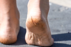 Treat your cracked heels at home 3