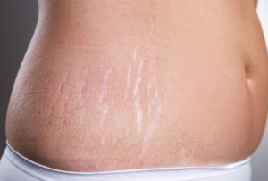 Home solutions for stretch marks 3